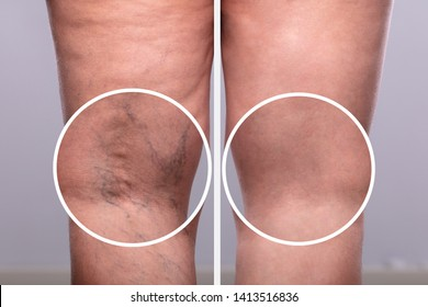A Person Knee's With Varicose Veins And Capillaries Before And After Medical Treatment