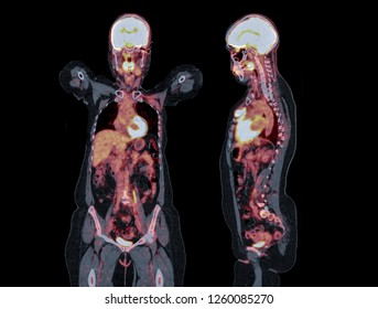 PET CT image of Whole human body coronal and sagittal plane. Positron Emission Tomography Computed Tomography .