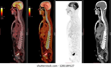 PET CT scan of Human Body (Positron Emission Tomography) Other Radiological Images (CT, MRI, PET CT, X-ray) in my portfolio)