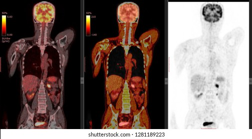 PET CT scan of Human Body ( Coronal view Positron Emission Tomography) High Resolution/ Many Other Radiological Images (CT, MRI, PET CT, X-ray) in my portfolio