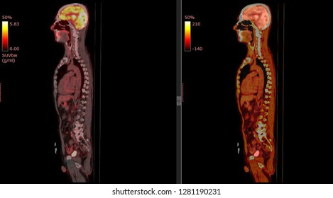 PET CT scan of Human Body (Sagittal view Positron Emission Tomography)  High Resolution