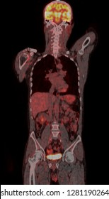PET CT scan of Human Body (Coronal view Positron Emission Tomography)  High Resolution