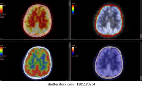 PET CT scan of Human Brain (Axial view Positron Emission Tomography)  High Definition