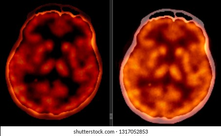 PET CT scan of Human Brain (Axial view Positron Emission Tomography)  High Resolution