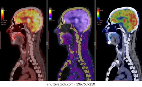 PET CT scan of Human Brain (Positron Emission Tomography)