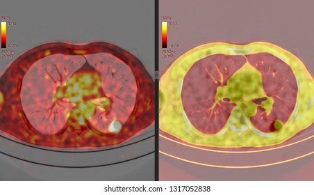 PET CT scan of Lung ( Positron Emission Tomography)  Many Other Radiological Images (CT, MRI, PET CT, X-ray) in my portfolio)