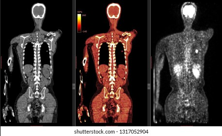 PET CT scan ( Positron Emission Tomography)  Many Other Radiological Images (CT, MRI, PET CT, X-ray) in my portfolio)