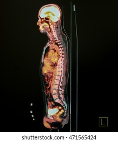 PET Scan of body Lateral View