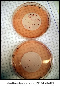 Petri dish with Enterococcus Agar and red bacterial colonies