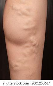 phlebeurysm, varicose veins of the lower extremities close-up, peripheral vascular disease.