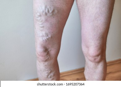 Phlebology. Varicose veins on the man lags.
