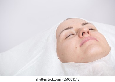 Photo of cosmetic procedures . Cosmetic injections .