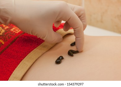 photo of doctor planting leeches on patient
