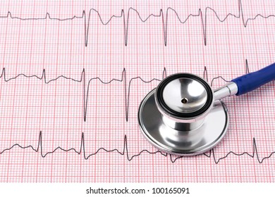 Photo of an electrocardiogram ECG or EKG printout with stethoscope