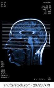 Photo of Head resonance