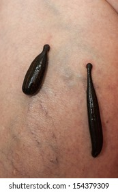 photo of leeches planted on patient and sucking blood
