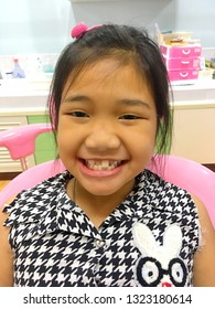 Photo of A little girl with heavy cross bite condition which is a type of oral misalignment is showing her teeth to the dentist. Pranburi, Thailand January 31, 2019