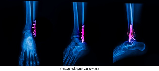 Photo of plain film of ankle in AP , lateral and mortise view. The film shown ankle fracture after open reduction and internal fixation with plate and screw . Blue tone isolated on dark background