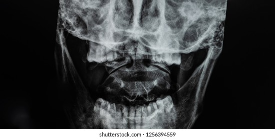 Photo of plain film open mouth view of cervical spine on dark background . The study use for diagnosis of occult fracture den / odontoid process. Grained picture is normal appearance of this study