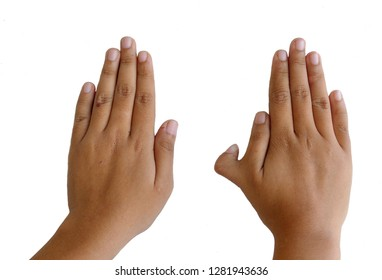 Photo of Polydactyly on human; rare abnormal characteristic causes by chromosome.