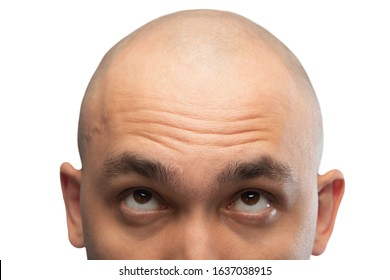 Photo of shaved man looking up, half head