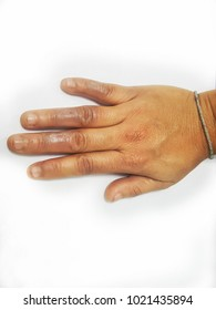 Photo of woman hand having second degree burn wound on fingers.