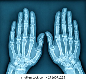 Photo of X ray Image of both human hands