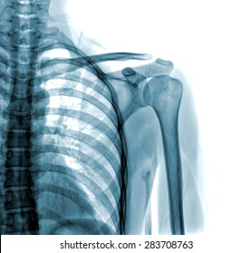 Photo of x-ray shoulder