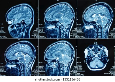 Photograph of magnetic resonance imaging of human brain in sagittal plane. The study use for diagnosis brain tumor  or vertigo