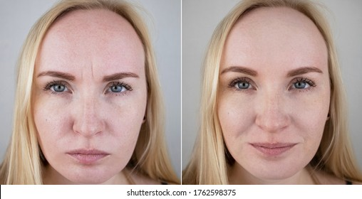 Photos before and after mesotherapy, biorevitalization, botulinum toxin injections. Skin fold between eyebrows, forehead wrinkles. At the appointment with a plastic surgeon or cosmetologist
