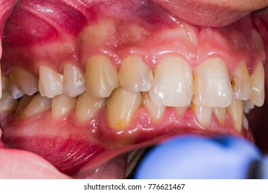 Photos of dental problems for didactic and patient education.