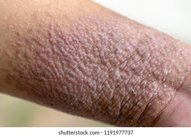 A physical of Atopic dermatitis (AD), also known as atopic eczema, is a type of inflammation of the skin (dermatitis).