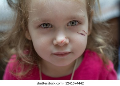 Physical injury blood wound skin child pain, Inflicted on the child's face. Bruise of a child. Pain concept close-up.