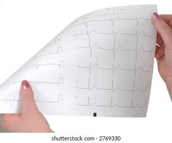 physician cardiologist reads cardiogram sick