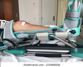 Physio theraphy exercise using Continuous Passive Machine (CPM) after knee arthroscopy surgery - meniscus repair and chondro plasty