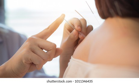 The physiotherapist is doing acupuncture young women.