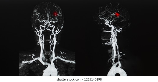 Picture of computer tomography angiogram CTA that shown blood vessel supply to brain . If aneurysm occurs patient had the weakness of limb . Hemiparesis related to hypertension . AP and lateral view.