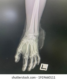 The picture of film x-ray left hand of patient who have wrist sprain, Medical Technology and Science concept.