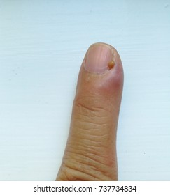 A picture of left index finger with pus next to fingernail called Paronychia it is a soft tissue infection around a fingernail that begins as cellulitis but that may progress to a definite abscess