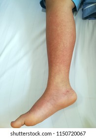 Picture of right lower leg showed recovery rash in dengue patient as multiple bleeding spots as red dots, is petechial hemorrhage on part of normal skin showed as red and white circular lesions