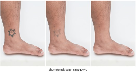 The picture shows before - after removing tattoos.