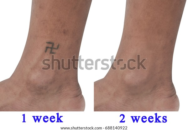 Picture Shows Before After Tattoo Removal Stock Photo Edit