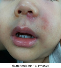 A picture of skin infection as cellulitis on the face showed small red bump or mass below the left side of nose swollen painful with radiate to the side involving swollen cheek next to the lesion