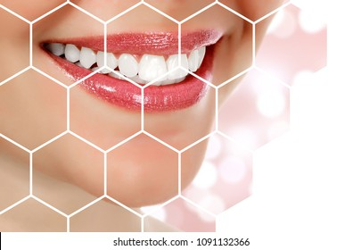 Picture of woman's smile against an abstract background with blurred lights, dental care concept