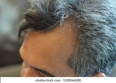 """Pictures of scalp conditions,hair loss and male pattern baldness in middle age of men,male pattern baldness develop a bald spot or hairline that recedes to form an """"M""""shape.Grey hair and scalp decease"""