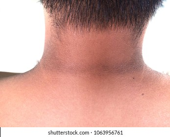 pigmentation at neck man Asia person black melanin