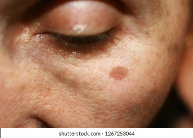Pigmentation on the face. Brown spot on cheek. Pigment spot on the skin.
