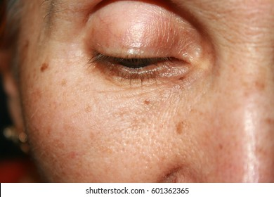 Pigmentation on the face. Brown spot. Wrinkles on the eyelid and under the eye.
