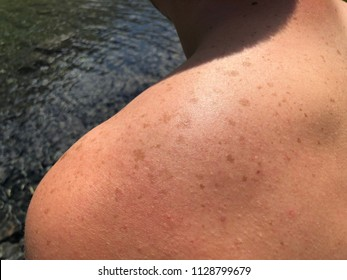 Pigmented spots on the skin. Freckles on the skin of a man. Dark birthmarks of the shoulder