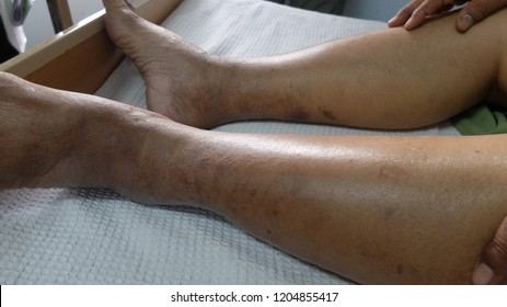 Piiting Oedema with Hyperpigmented Lower Limbs in patient with hypoalbuminemia.